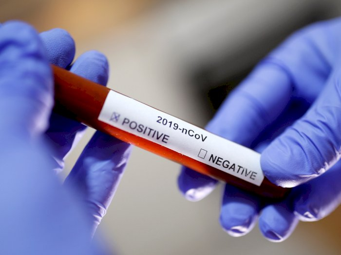 Antibiotik Hingga Disinfektan, Mana yang Ampuh Lumpuhkan Virus Korona?