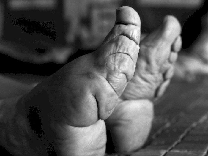 Lotus Feet, Standar Kecantikan Tiongkok di Masa Lalu yang Bikin Ngeri
