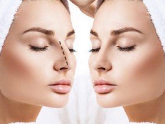 Syarat yang Harus Kamu Penuhi Jika Berencana Operasi Hidung: Bukan Pasien Diabetes
