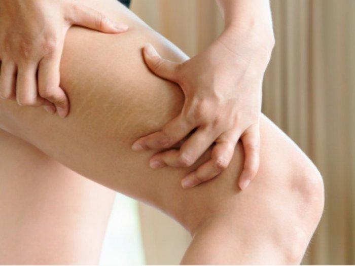 Pakai Darah Sendiri, Begini Terapi PRP untuk Hilangkan Stretch Mark