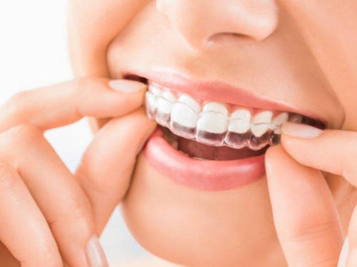 Inilah Cara Merapikan Gigi Selain Menggunakan Behel atau Kawat Gigi