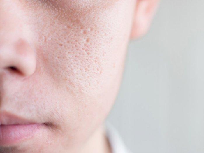 Mitos Seputar Pori-pori Kulit Wajah yang Harus Kamu Tahu