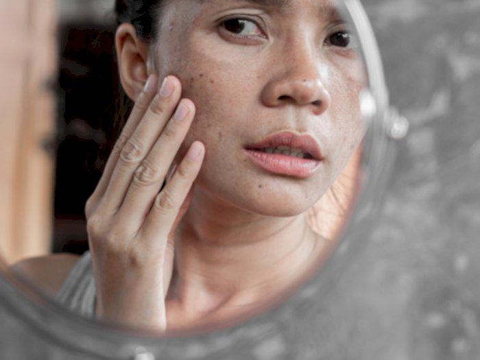 Kulit Rusak Akibat Mencoba Skincare Baru? Begini Cara Mengatasinya!