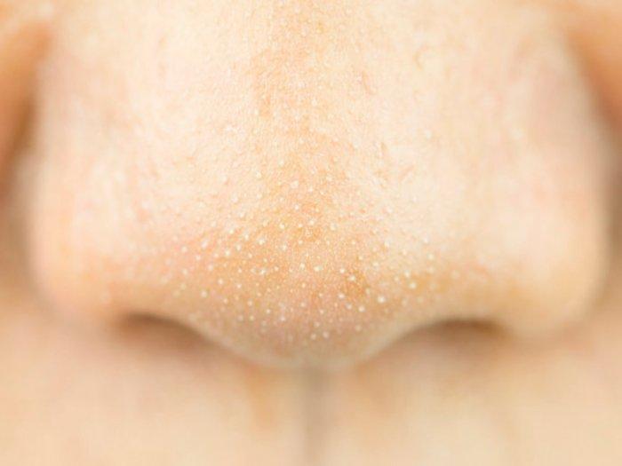 Sering Mengganggu, Ini Penyebab Munculnya Komedo Putih di Hidung