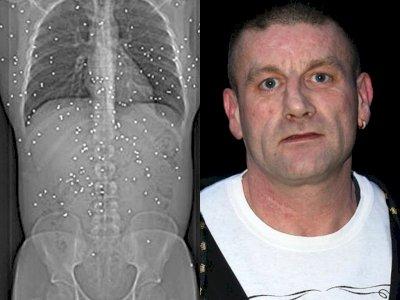 Setelah 15 Tahun Terkena Serangan Senapan, Tubuh Pria Ini Masih Penuh dengan Peluru