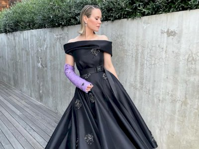 Tetap Fashionable Walau Cedera, Seleb Hollywood Ini Pakai Gips Mewah Prada di Tangannya