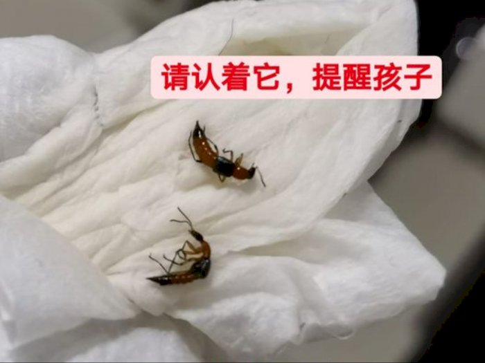 Pengguna Facebook Ini Peringatkan Publik Bahaya Semut Charlie Bagi Kulit