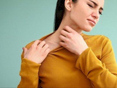 Sering Tak Disadari, Inilah Pemicu Alergi Menurut Pakar