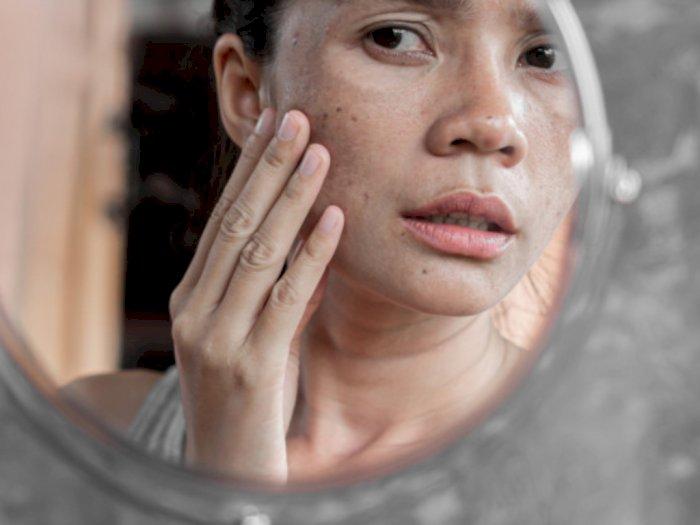 Penyebab Flek Hitam Muncul di Wajah, Salah Satunya Paparan Sinar UV
