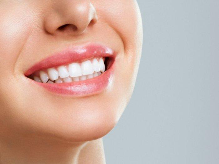 3 Usaha Putihkan Gigi Tanpa Bleaching, Bisa Dicoba di Rumah