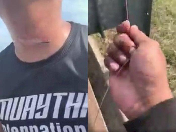 Leher Petugas Polisi Ini Tersayat Setelah Tersangkut Tali Layang-layang yang Jatuh