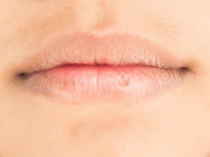 Cara Mengatasi Bibir Kering dan Pecah-Pecah Saat Puasa