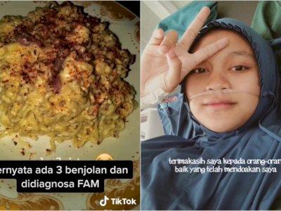 Gadis Ini Kena Tumor Payudara Gegara Terlalu Sering Makan Junk Food dan Micin