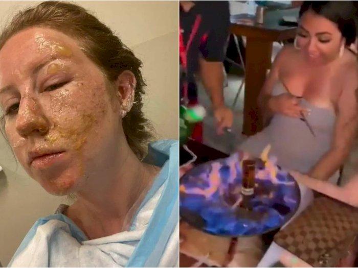 Wanita Ini Alami Luka Bakar di Wajah Setelah Staf Restoran Menuangkan Alkohol dan Meledak