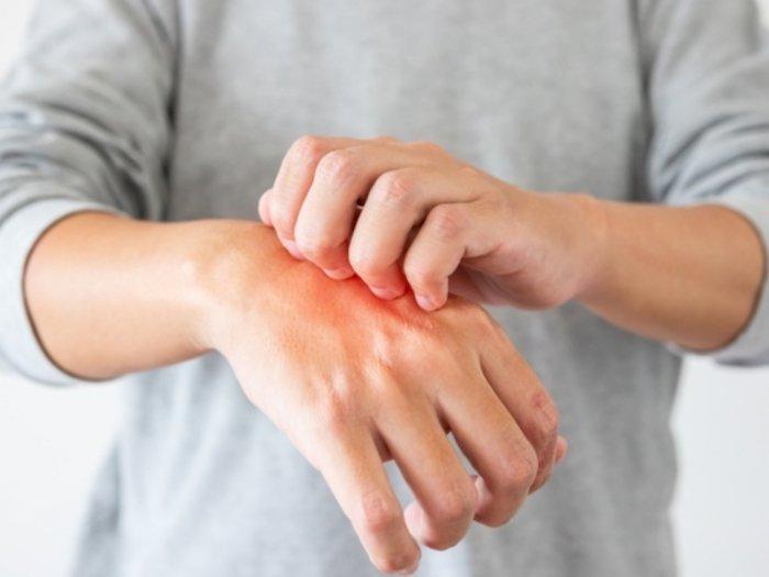 Fakta-fakta Seputar Sensasi Rasa Gatal yang Bikin Kamu Terus Menggaruk