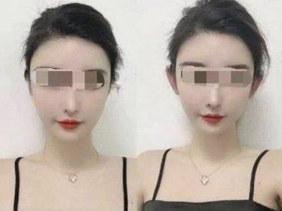 Viral Tren Kecantikan 'Telinga Peri ' di China, Membuat Muka Jauh Lebih Muda dan Tirus
