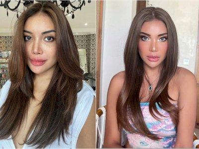 Penampilan Terbaru Millen Cyrus Tuai Cibiran Netizen: Sumpah Serem, Bibirnya Gede Banget