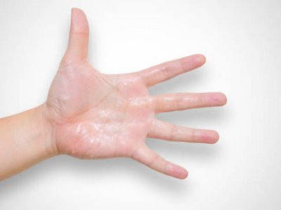 Penyebab dan Cara Mengatasi Tangan Berkeringat dengan Mudah