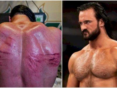 Ngeri! Pegulat WWE Drew McIntyre Pamer Bekas Luka Pasca Duel dengan Bobby Lashley