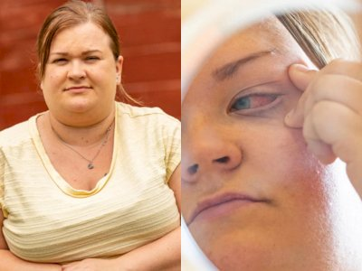 Wanita Ini Hampir Kehilangan Penglihatan Setelah Mengira Lem Kuku Adalah Obat Tetes Mata