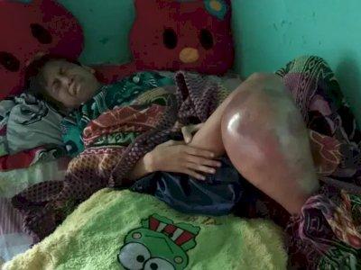 Kasihan! Idap Kanker Tulang Ganas, Kaki Putra Terancam Amputasi & Tak Bisa Pergi Sekolah