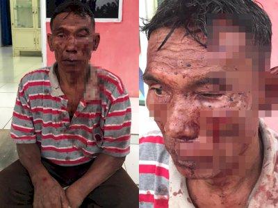 Kejam! Pria Tua Dipukuli Kepala RT hingga Terluka dan Berdarah, Pelaku Mengaku Dendam