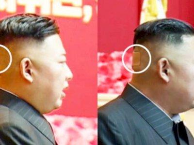 Kepala Kim Jong-un Diplester, Picu Rumor Jika Dirinya  Mengidap Penyakit