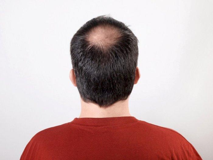 Rambut Botak di Usia Muda? Mungkin Ini Penyebabnya
