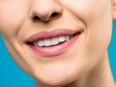 Ini Penyebab Gigi Tidak Rata dan Cara Mengatasinya