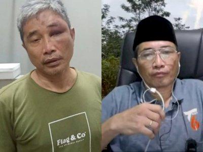Polisi: Ada 6 Calon Tersangka Penganiayaan Terhadap Muhammad Kece di Rutan