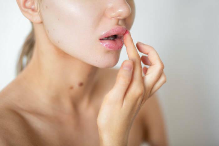 cara agar bibir tidak kering