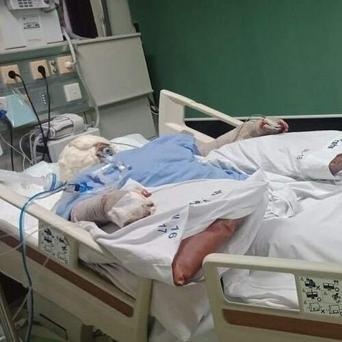 Indah Daniarti (22) saat menjalani perawat di RSUD Hasan Sadikin akibat luka bakar yang diderita. (Kitabisa)
