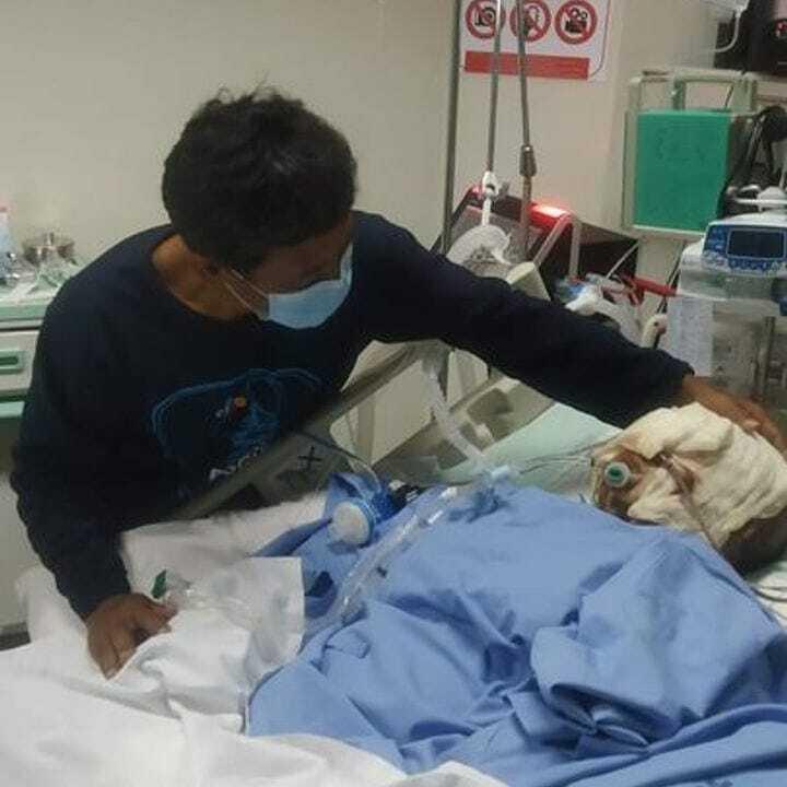 Indah Daniarti saat menjalani perawatan akibat luka bakar. (KitaBisa)