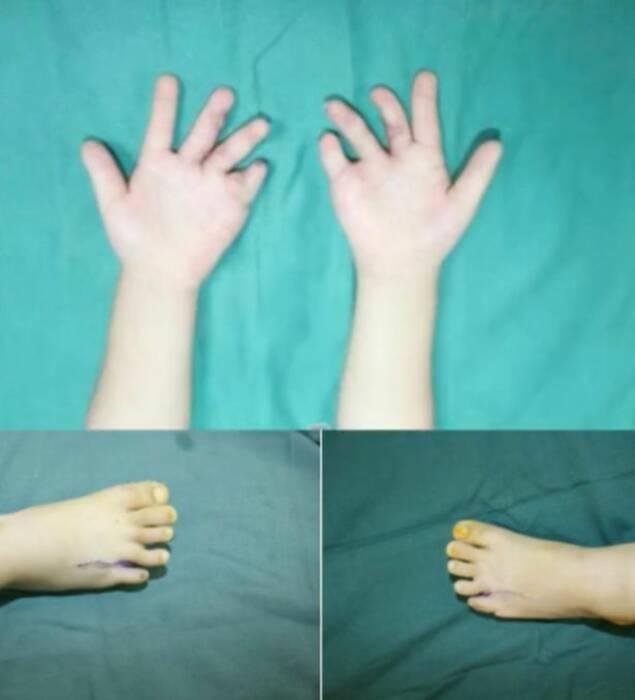 Jari gadis 4 tahun setelah proses operasi yang cukup lama.